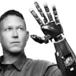 myoelectric prosthetic arm