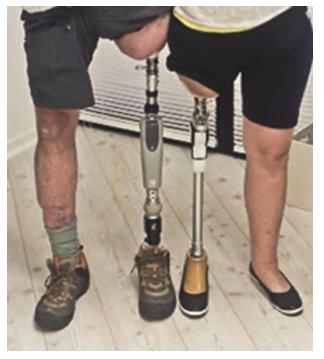 Prosthetic Limb Attachment Alternative Now In Texas