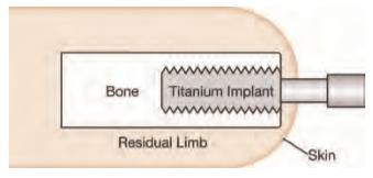 prosthetic osseointegration implant suspension
