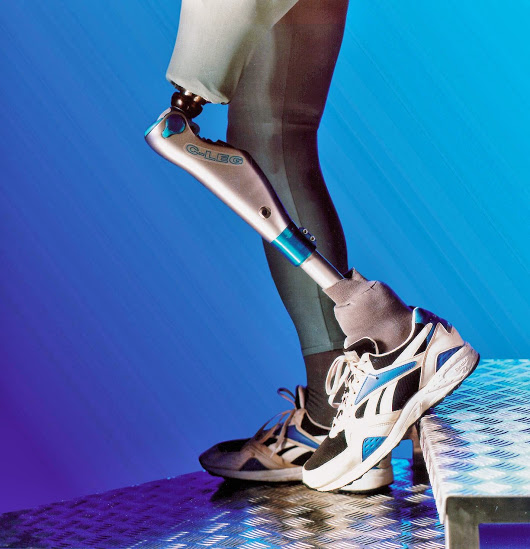 Taking The Guesswork Out Of Walking – C-Leg System Offers Confidence, Mobility to Above-Knee Amputees